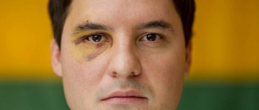 Toronto Man Beaten in Anti Gay Hate Crime