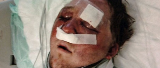 Texas Gay Man Beaten After Mobile App Meeting